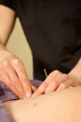 Coomera Wellness Centre - Acupuncture