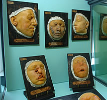 From The museum of Medical Instruments from the Hospitals of Toulouse