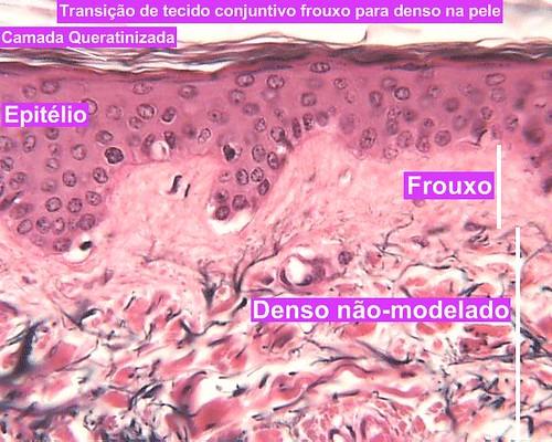 Transição de tecido conjuntivo frouxo para denso na pele