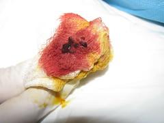 fitoterapia hemorroide: