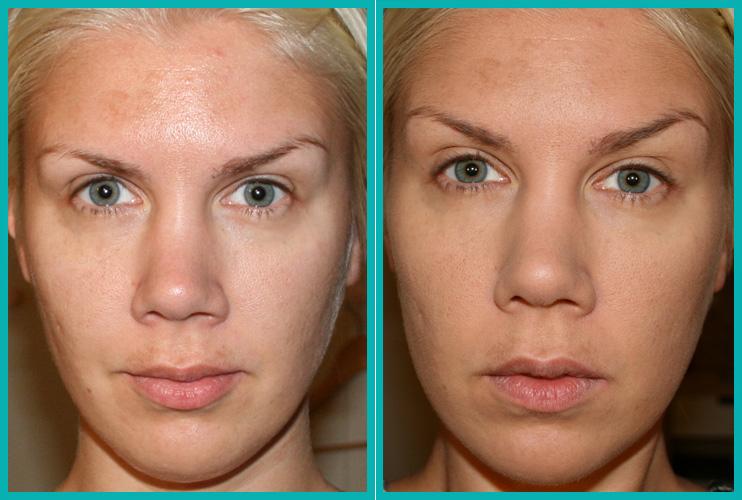 vita pigmentfläckar behandling
