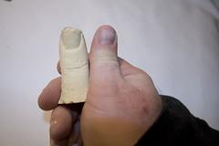 mike's thumb