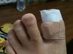 足指クッション
