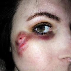 cute (thegayestcat) Tags: eye bruise but cut scrape blackeye blood grunge punk desaturated desaturate