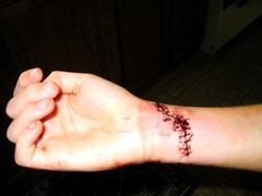 after er trip 16 stitches (stormmie) Tags: window er cut stitches wrist emergencyroom cutwrist wriststitches