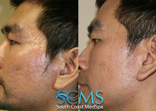 and even deeper lumps (cysts or nodules) that occur on the face, neck,