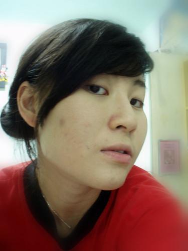 how to get no pimples