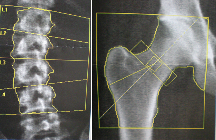 X is for X rays