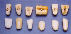 première prothese porcelaine