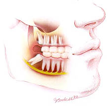 3739870000 2e3c2098a2 o Oral Surgery   The Basics