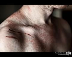 Numb (Rick Nunn) Tags: self neck blood personal rick scratches shoulder numb fuckedup stubble adamsapple needashave thiswasnevermeanttobeseenbytheworld vsortpop