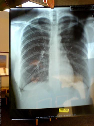 HIPPAA-compliant crappy photo of rachel's chest x-ray - DSC03194