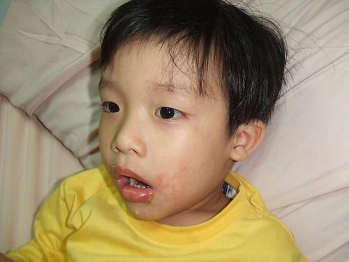 佑、彥腸病毒住院002