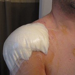 Shoulder post-surgery