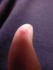 Thumb, internal bleeding