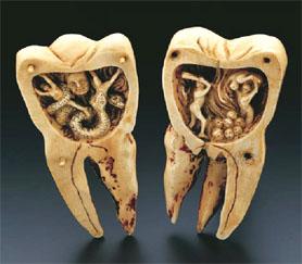 Scultura in avorio di un verme dentario che dovora un uomo