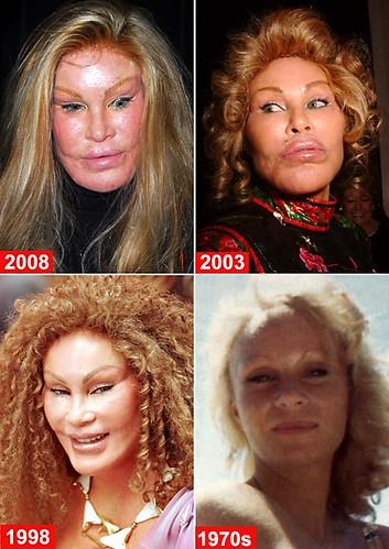 jocelyn-wildenstein Before & After