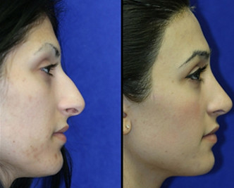 pug nose rhinoplasty