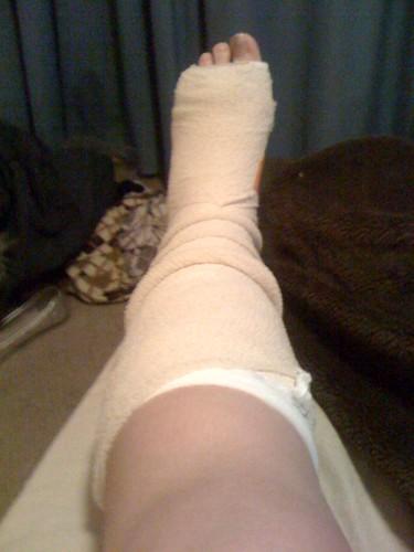 Broke foot