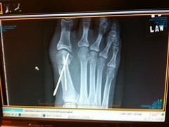 X-Ray of Kate's Foot