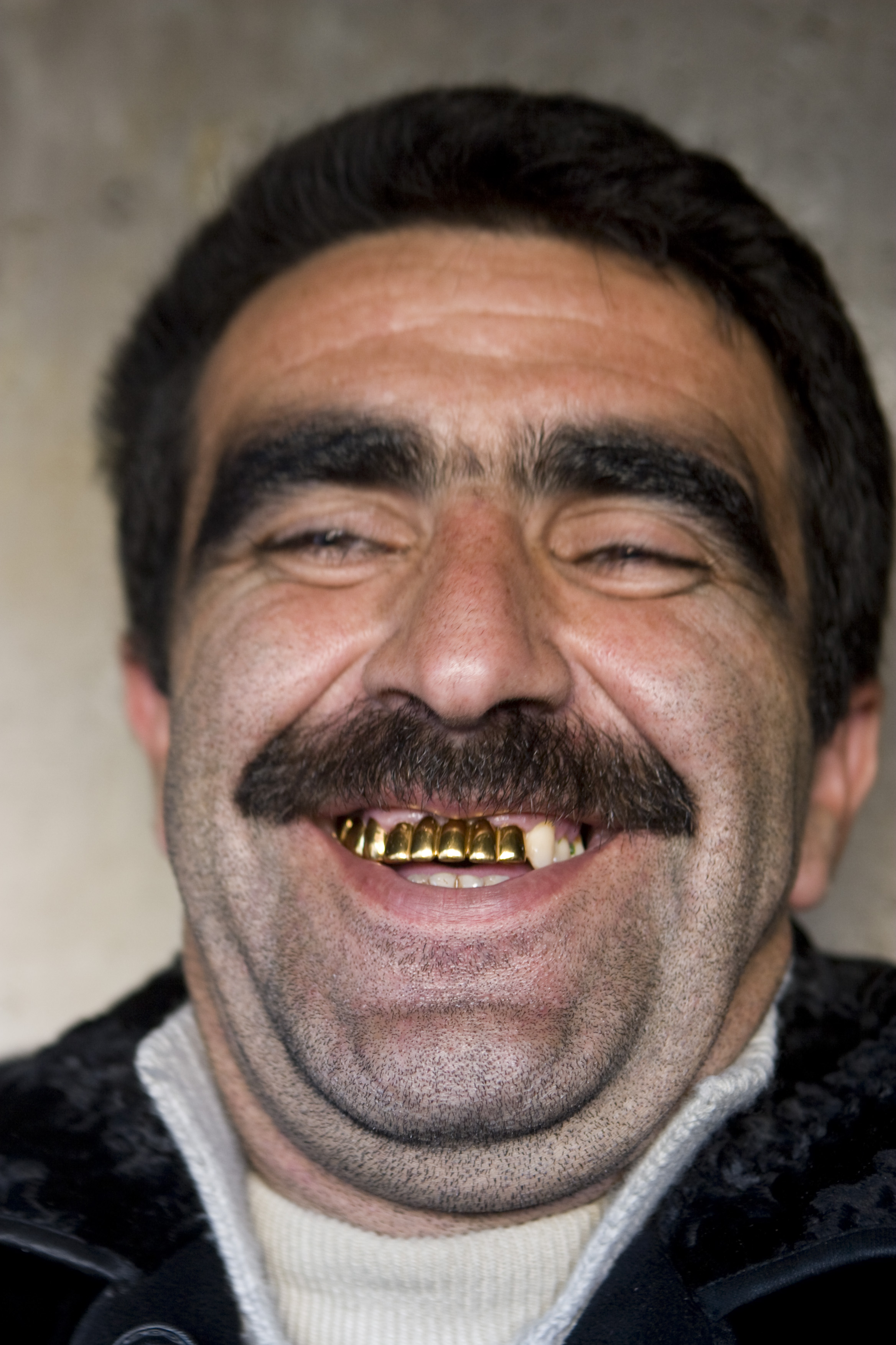 golden-teeth_3