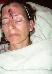 Rue Morgue,Pari. (mishamartin007) Tags: woman paris face death blood cut jewelry gone towels fx morgue deseased