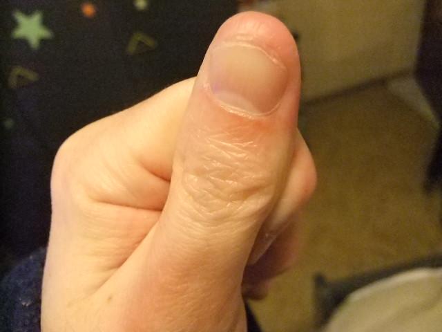 Consider, that thumb sucking dominant hand not