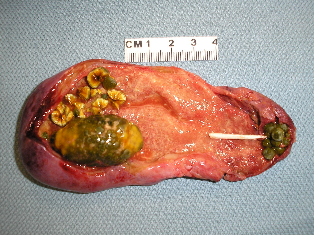The World's most recently posted photos of gallbladder and ...