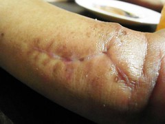 SAM_4981 (thwl) Tags: restaurant hand injury stitches wrist scar killiney suanthai