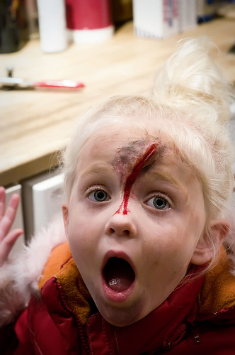 girl scratched by lion ...