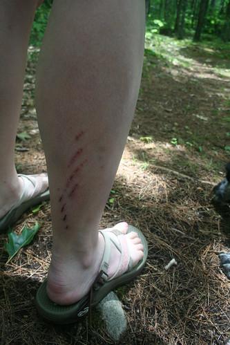 Bike Wounds