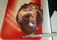 heart-dorsal (biologycorner) Tags: heart anatomy anatomical valves bicuspid mitral ventricle atrium aorta pulmonary