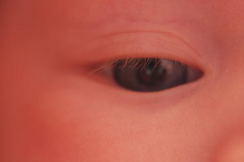 Nora Right Eye