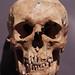 Skull of 17th Century Man