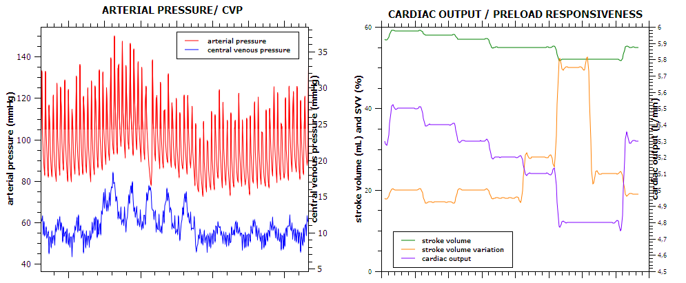 Cardiac output and stroke volume
