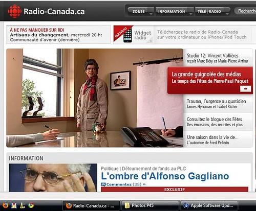 Mon bras en une de Radio-Canada!