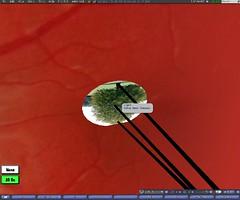 GCU_eye_wip_02 (Hwyvar) Tags: health secondlife gcu