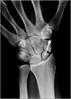 The news I've been dreading :o( (andrewwdavies) Tags: blackandwhite apple broken monochrome screw arm lol surgery 3g again xray bone wrist left operation titanium fracture scar carpal iphone scaphoid nonunion bonegraft andrewwilliamdavies nothealed stillbrokeno