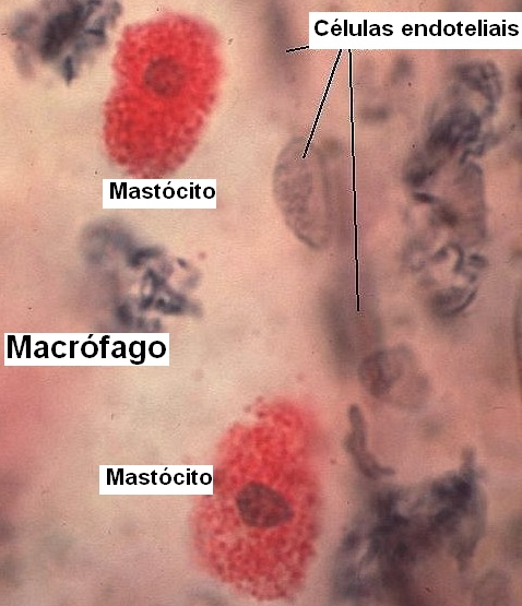 Mastócito