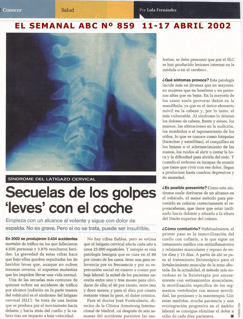 ABC_LATIGAZO CERVICAL
