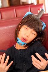 Qiqi Head Injury 12-12-09_0063_1