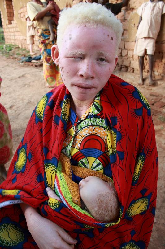 Not doubt albino african tribe girls situation