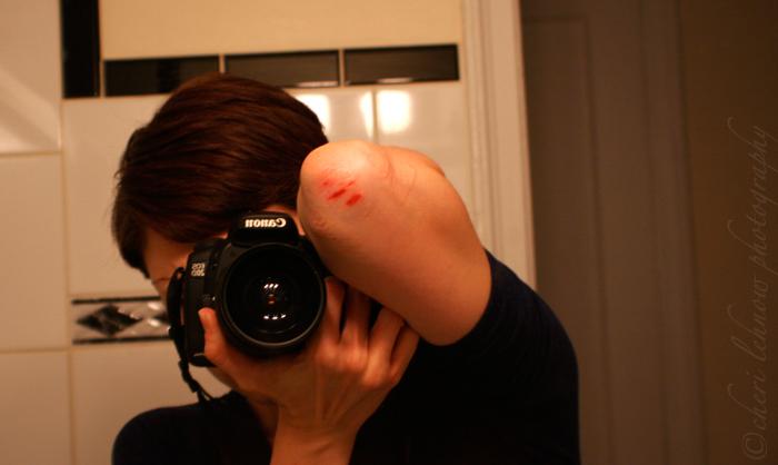 IMG_6845_injury.jpg