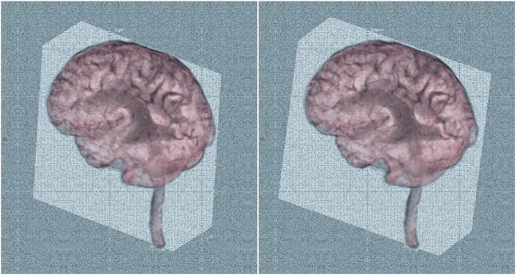 Brain In The Box