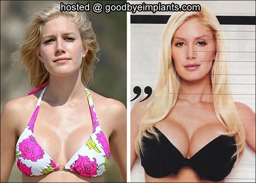 Opinion Heidi montag boob with you