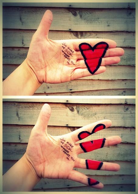 Love hurts...