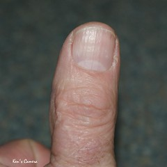 90/365 My Left thumb (Pyogenes Gruffer) Tags: me myself ouch mine nail sp thumb 365 scar smorgasbord 365days i icutitwitharouter