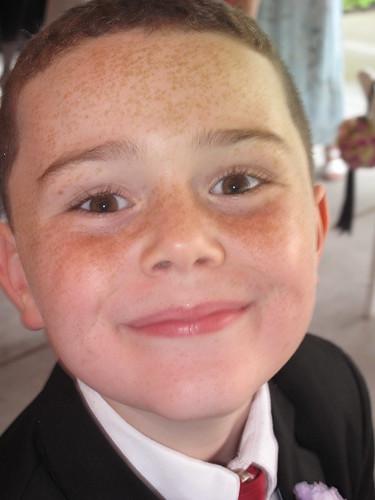 Freckled Jack