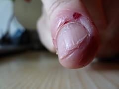 Eatnails (Lorenzo Bl) Tags: finger nail biting nails lorenzo mangia unghie onicofagia fleshless blangiardi lydser