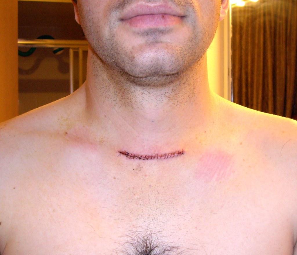 Thyroid Scar
